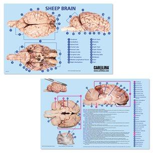 Dissektionsmatta - Hjärna